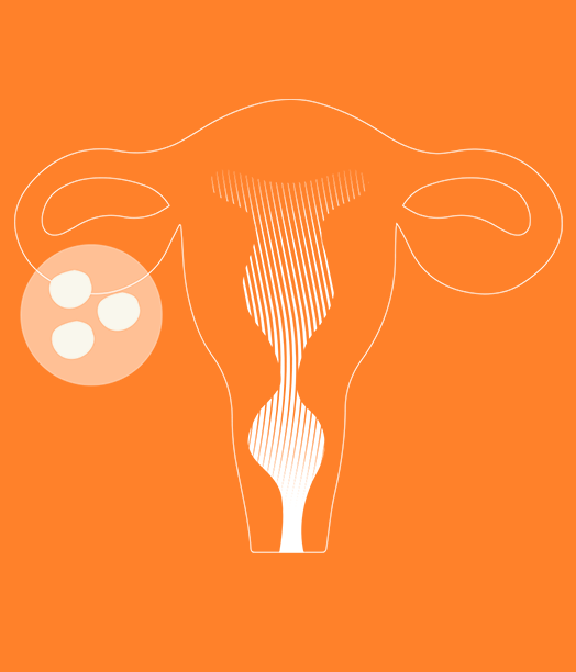 Female Illustration02